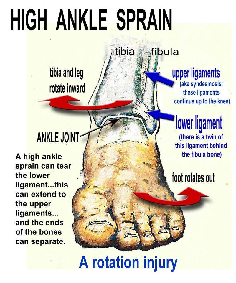 Sprains - Mit raktam fel? 🏥 Betegség, A Tünetek, A Kezelés.