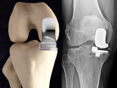 a térdízület artrózisos kezelésének 2. szakasza
