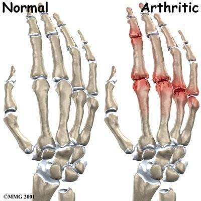 artrózis kezelés ízületi gyulladás okai kezelés kreolin ízületekkel