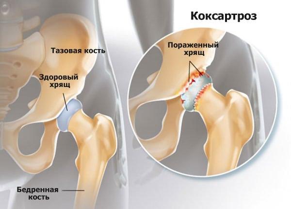 fájdalom a lábakban és a csípőben hogyan lehet kezelni a láb és a lábujjak ízületeit