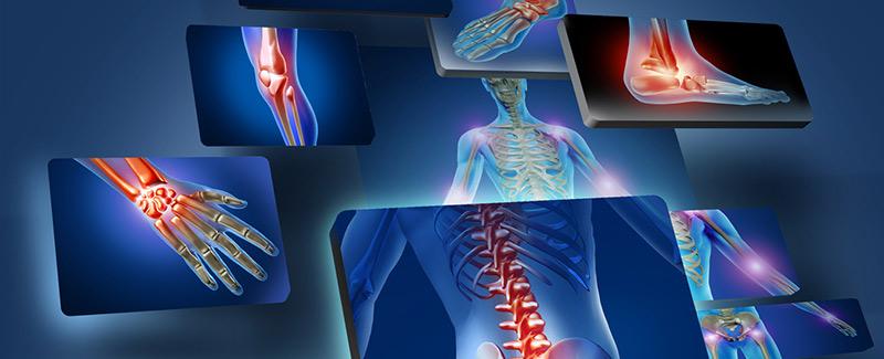 változás az ízületben artrózissal és ízületi gyulladással mutassa meg az együttes kezelési vényt