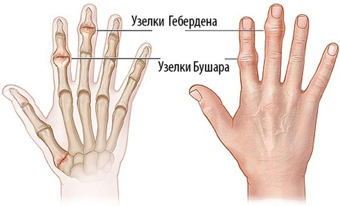 csukló-styloiditis kezelés térdideg kezelés