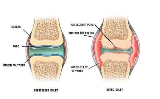 a térd bursitisének kezelése fizikai eljárásokkal miért fáj a kar ízületei
