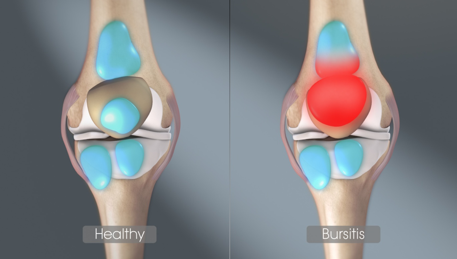 térdfájdalom lapos lábak miatt gyógyszerek boka ízület