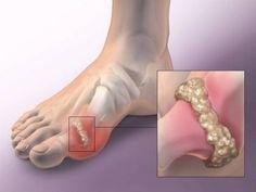 ha a második lábujj ízülete fáj allergiák és ízületi gyulladások