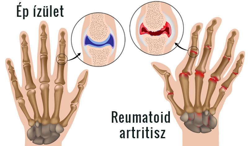 gyógyszerek az ujjak ízületeire