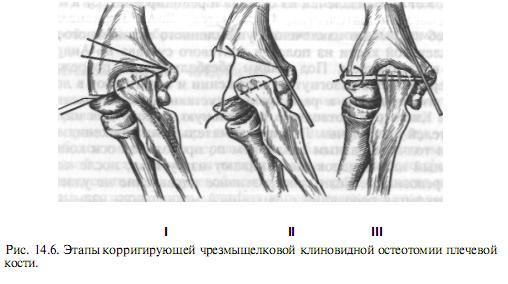 Miért fáj a láb a csípőtől a térdig: az oka, a fájdalom kezelése - Myositis -