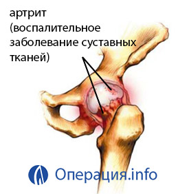 a bokaízület károsodásának komplikációi artrózis keleti orvostudományi kezelés