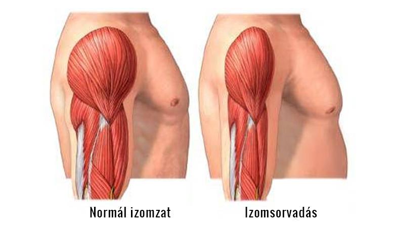 diklofenak csípőfájdalom fáj az ember vállízülete