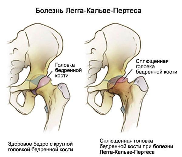 diklofenak csípőfájdalom hogyan kezeljük az ízületi törést