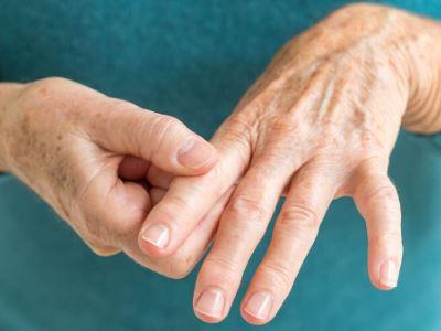 duzzanat a fájdalom a kéz ízületeiben
