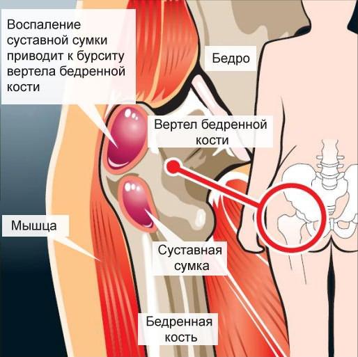diklofenak csípőfájdalom kefe ízületi kezelés