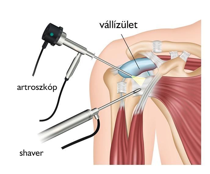 nyaki fájdalom vállízület kezelése erek és ízületi fájdalmak