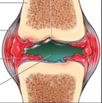 térdízület kezelése ízületi gyulladás ízületi műtét kezelése