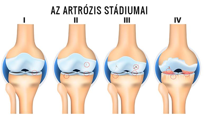 bemutató artrózis és kezelés