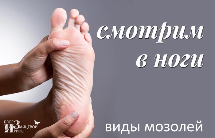 fájó ízület a lábánál, a nagy lábujj közelében könyökízületi fájóprés