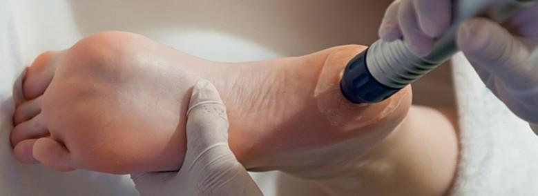 krém kenőcs a lábak ízületeihez csukló-repedések kezelése