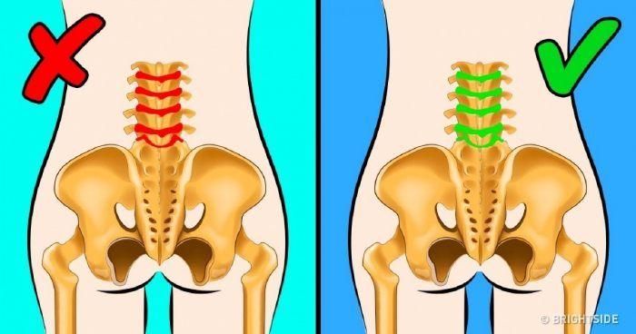 alsó hátfájás a csípő