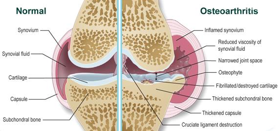 hogyan kell kezelni a vállízület duzzanatát artrózis kezelése földigilisztákkal