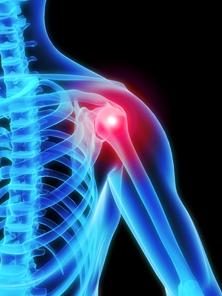 a csípő coxarthrosisának kezelésére xefocam ízületi fájdalomcsillapító