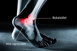 súlyos fájdalom és a bokaízület duzzanata