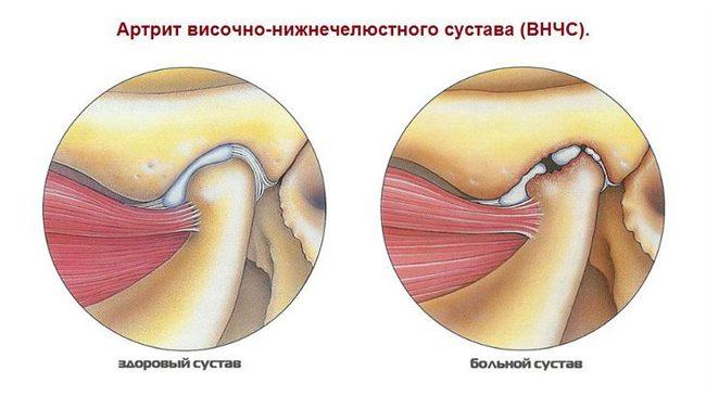 a térd megerősítése sérülés után