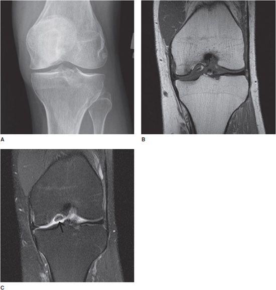 femoralis osteochondrosis