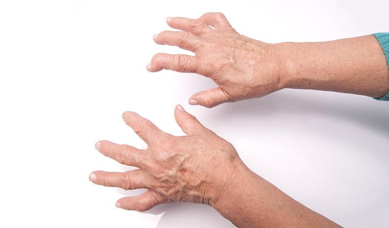 rheumatoid arthritis ujjak kezelése