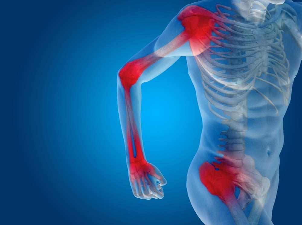 két vállízület fáj a 2. fokú artrózis hatékony kezelése