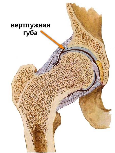 hogyan lehet enyhíteni a csípőízület artrózisát