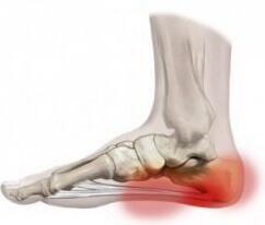 kenőcs a bokaízület deformáló artrózisához