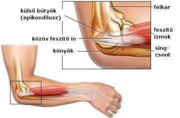 könyök artrózis hogyan kell kezelni