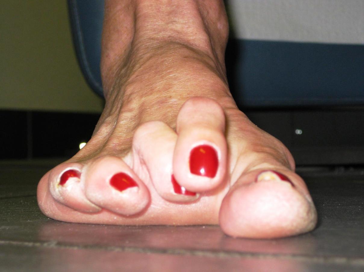 Mi az arthrosis a láb - tünetek és a kezelés, annak okai, hogyan kell kezelni a lábfájdalmat