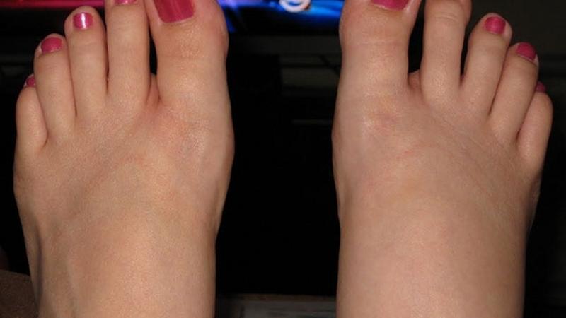 lábízületi receptek ujj interfalangeális ízületi sérülés