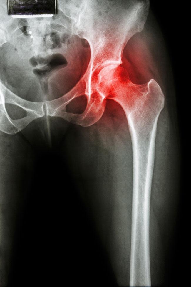 éles, éles fájdalom a csípőízületben