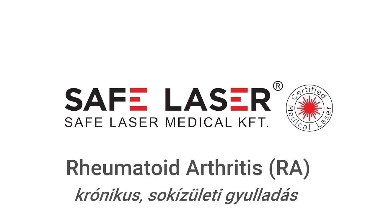 rheumatoid arthritis hogyan és hogyan kell kezelni
