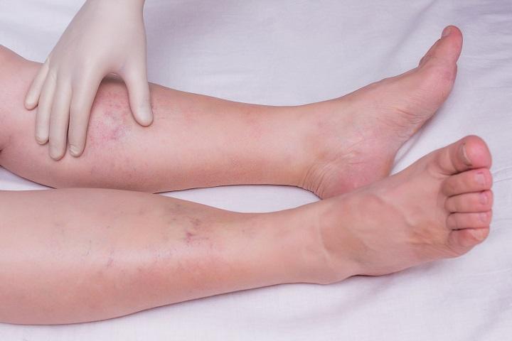 tartós fájdalom a láb ízületeiben kötőszöveti diszplázia kezelés mi ez