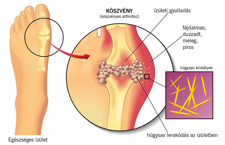 térdízület gyulladás dimexidum kezelés