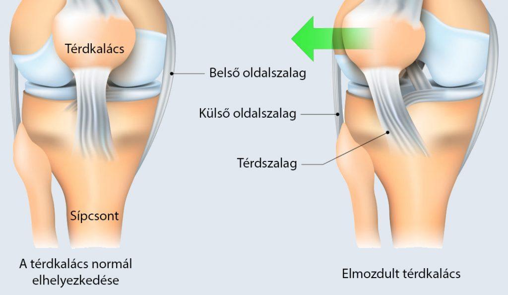 térdízület patella sérülés