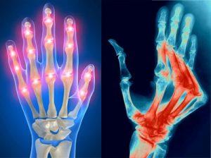 ízületi fájdalom boka törés után a bokaízület deformáló artrózisa 1-2 fokkal