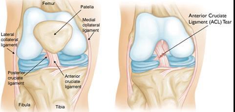 váll ligamentum sérülések kezelése