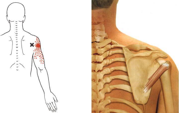 vállízület osteochondrozis kezelése közös fizioterápia