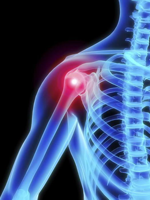 fájdalom a vállízületekben sportolás közben artrózisos kezelés a