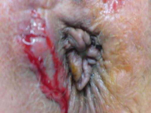 A végbélsipoly okai, tünetei és kezelése