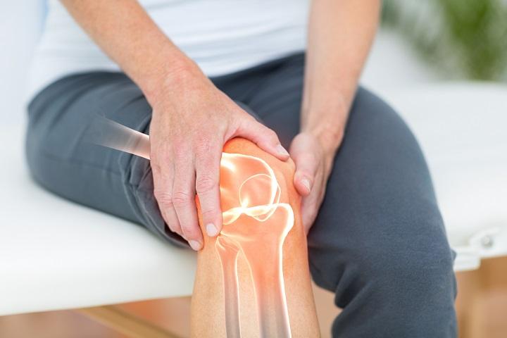 1. fokú mindkét térdízület deformáló artrózisa