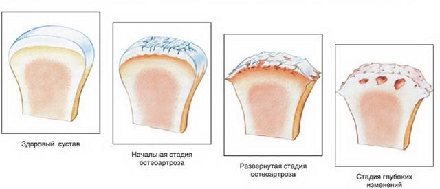 ízületi pusztítás 3 fokos kezelés