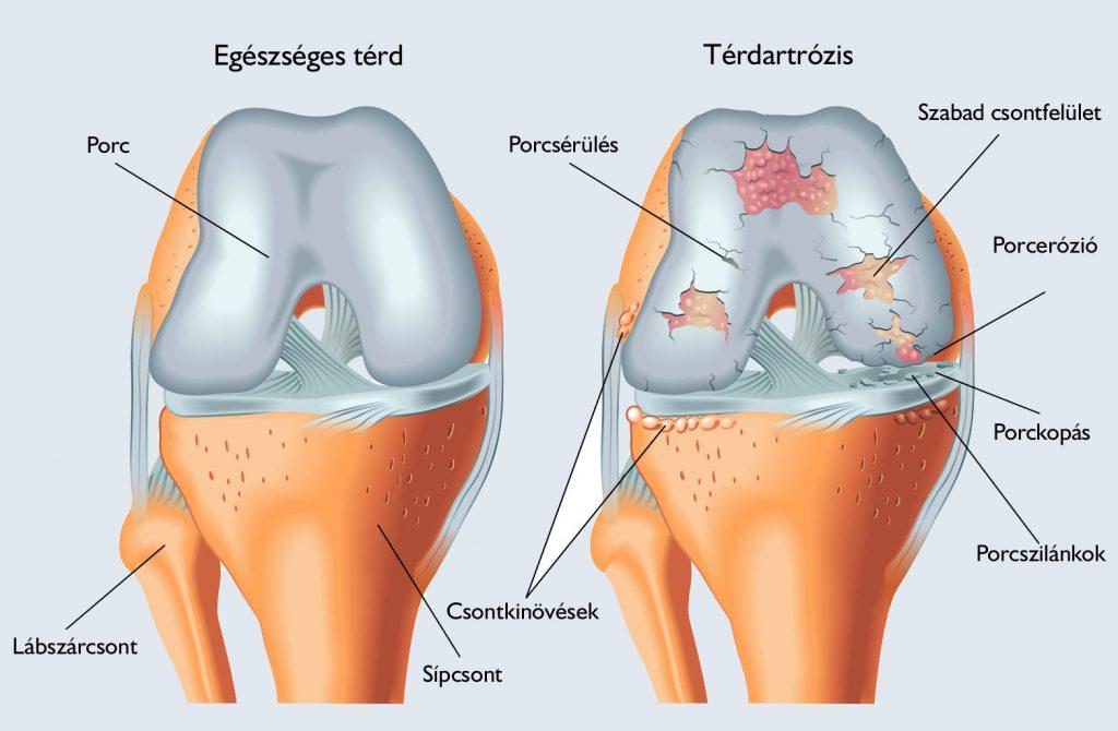 heves fájdalom a combban járás közben mi a különbség a térdízület artrosis és a gonarthrosis között