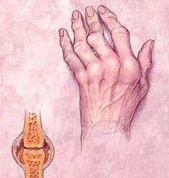 aki kezeli a reumás ízületi gyulladást