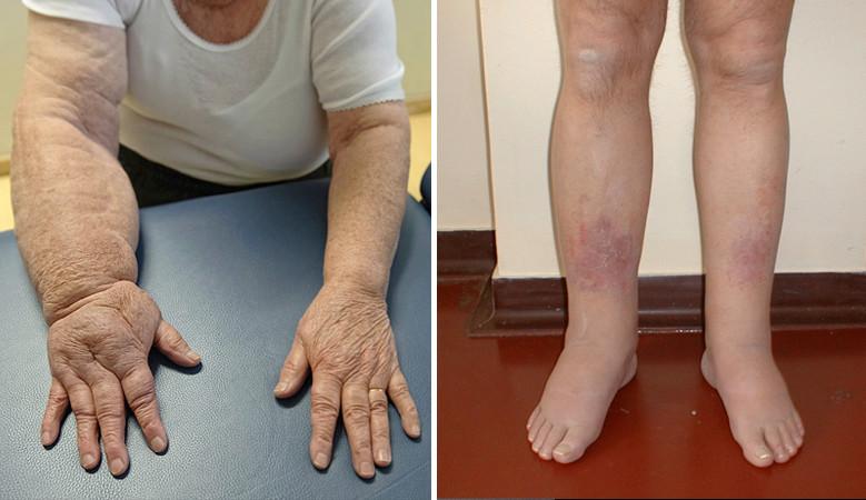 miért fáj a karom ízületei alvás után ózonterápia ízületi fájdalmak esetén