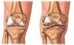 ízületi fájdalom a lábujjakon ízületi kezelés fokhagymaolaj